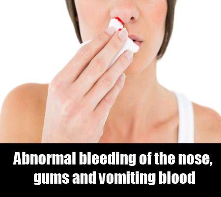 Abnormal Bleeding
