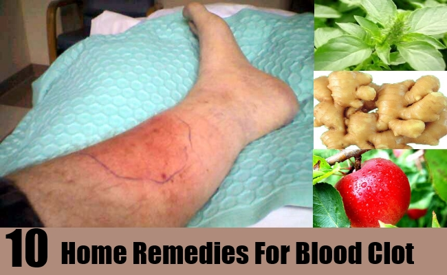 Home Remedies For Blood Clots