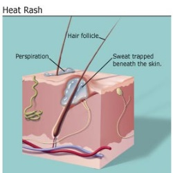 Home Remedies For Prickly Heat