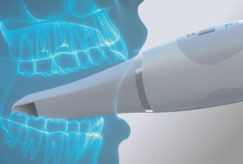 Schieritz Dental-Technik – Carestream Dental Scanner
