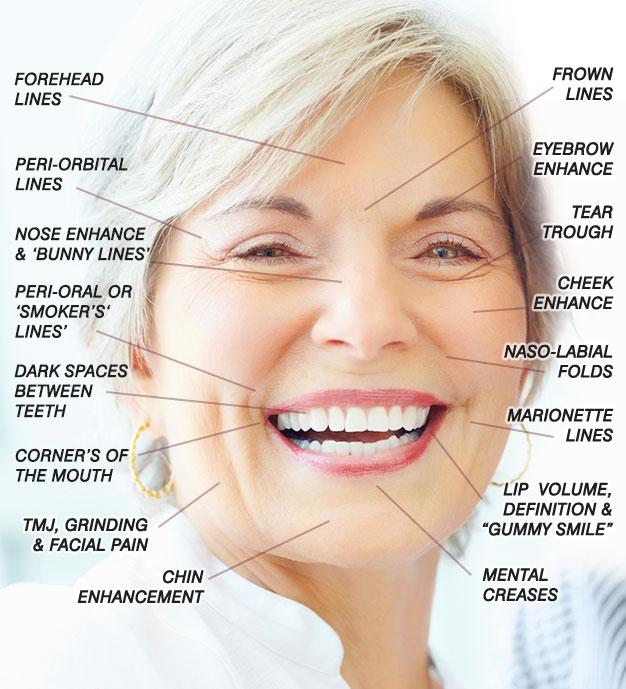 acne face diagram mercedes sprinter abs wiring dermal fillers – naturalbeautylaser.com
