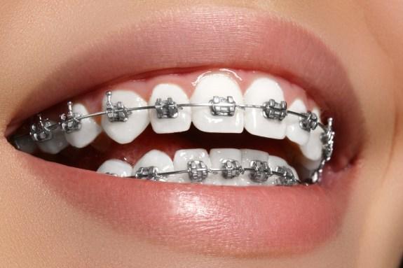 aparat na zęby ortodonta Wilanów