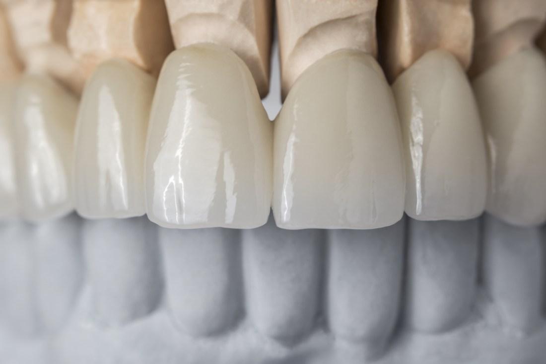 miniatura protetyka zębów