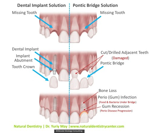 small resolution of dental implant vs bridge dr may best dental implant dentist ct