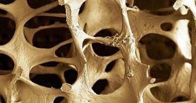 huesos_osteoporosis