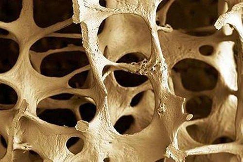 Prevenir la osteoporosis