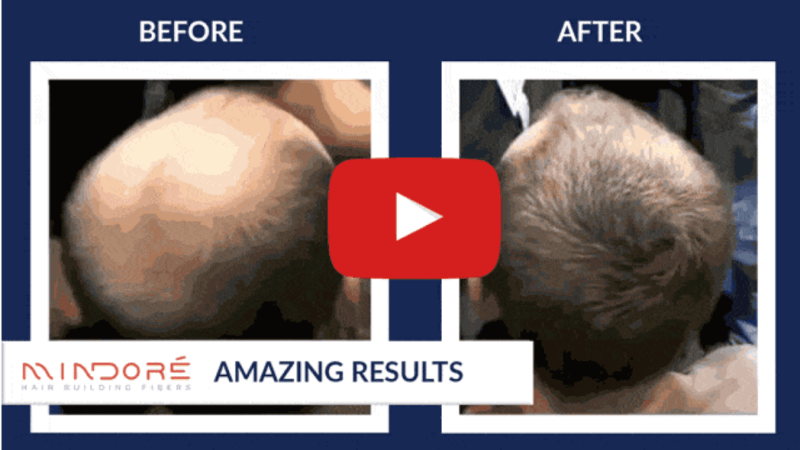 Wheat Germ For Hair Loss