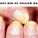 How To Get Rid Of Yellow Nails FAST