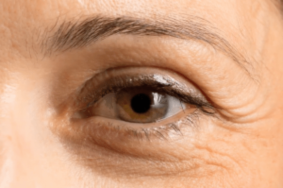 How to Get Rid of Crow's Feet around Eyes