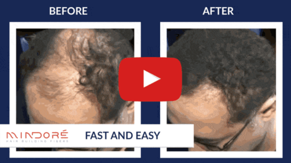 How to naturally make your hair grow faster for men