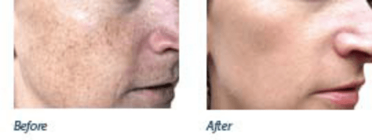 how to get rid of large pores naturally