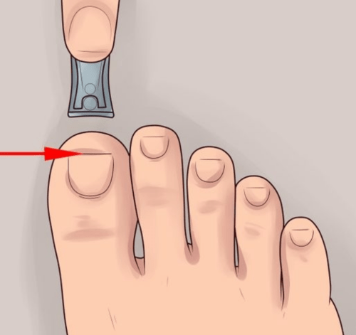 Clipping The Toenail