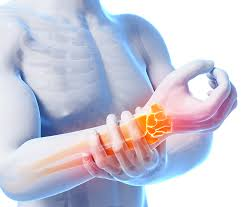 Carpal Tunnel Syndrome: Repetitive strain injury