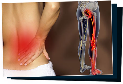 Sciatic pain relief: How to ease the Pain of Sciatica