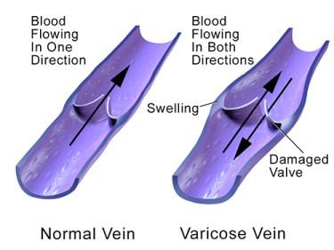 Do varicose veins hurt