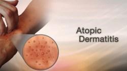 how to treat dermatitis