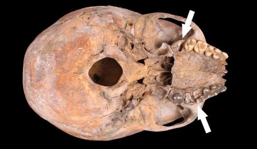 Adult, probable female skull