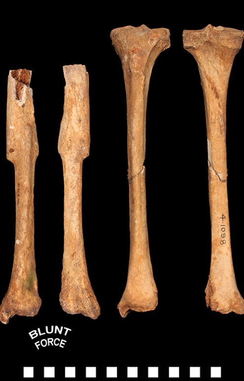 Left tibia with a healed midshaft fracture