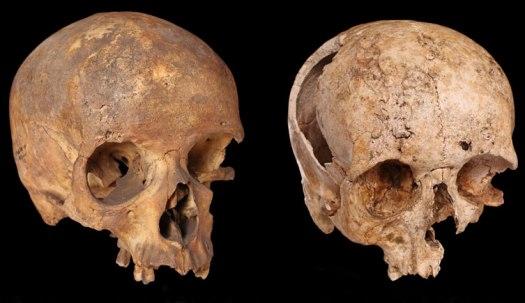 syphilis-specimens-two-column