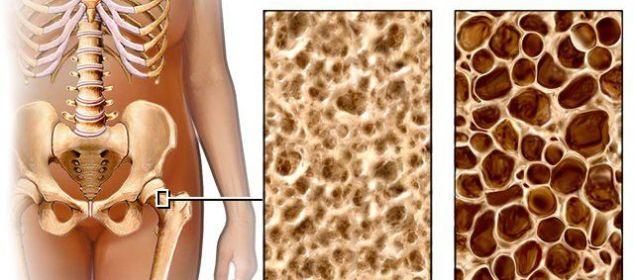 como prevenir la osteoporosis y cuidar los huesos