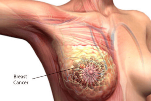 18 Causes of Pain Under Left Breast with Treatments