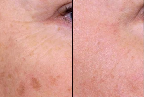 Before and After Images - Physicians Tattoo & Age Spot Removal in ...