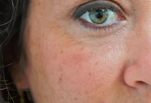 Antiaging Slideshow: Get Rid of Wrinkles, Dark Circles, and More