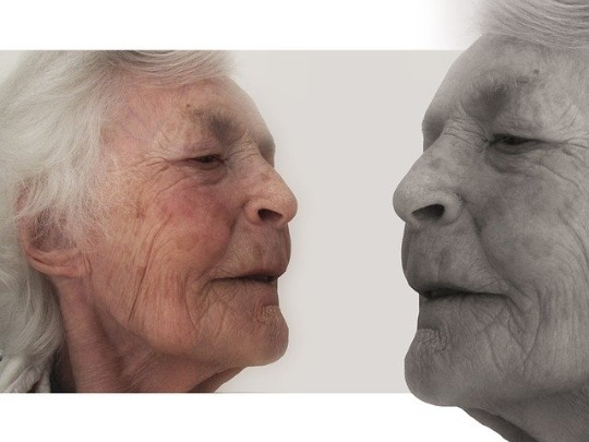Illustration of age spots on the face.