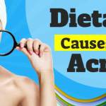 Dietary causes of acne featured image.