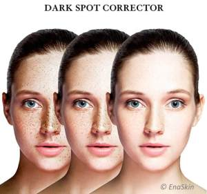 Featured image for the Dark Spot Correctors and Removers article EnaSkin vs other products.