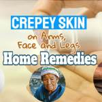 "Image text says: ""Crepey skin on arms eyes face legs""."
