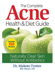 the complete acne health & diet guide book review, best natural acne treatment books, how to get rid of pimples, adult acne, how to get rid of acne naturally, home remedies for acne