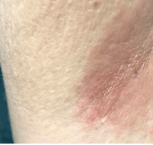 armpit rash