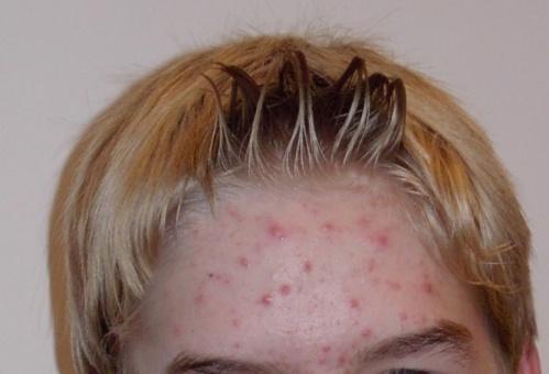 Frauenmantel akne