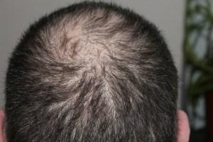 Haarausfall kann die Folge von Übersäuerung sein