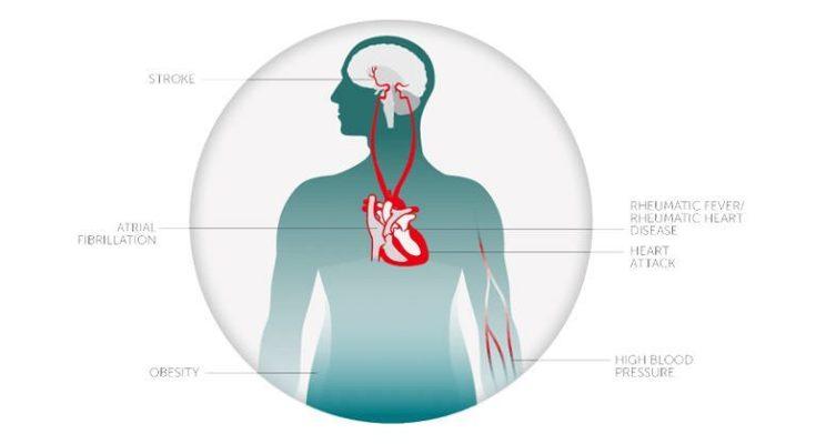 Heart disease can be reversed
