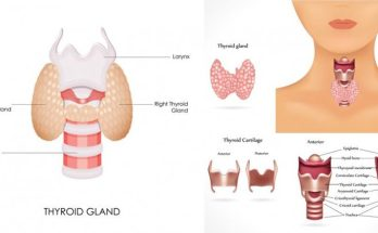 Do you have a thyroid issue?