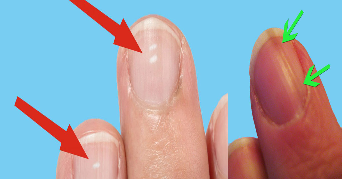 10 nail symptoms and what they mean for your health | Natural ...