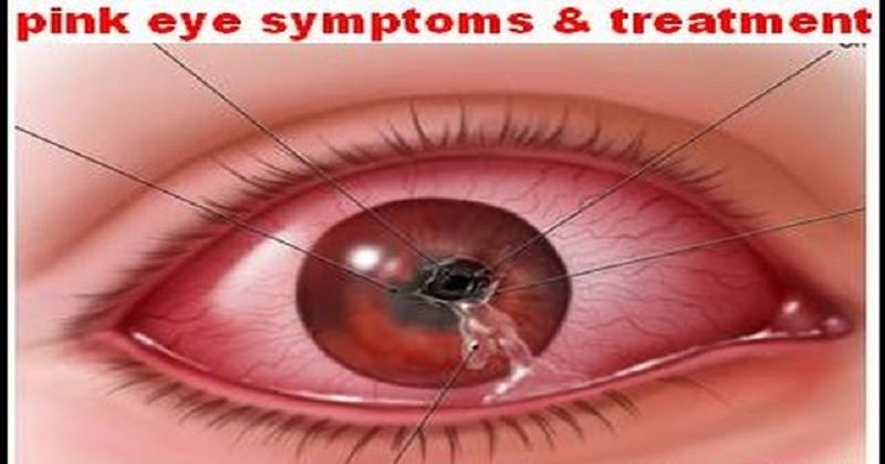 How To Treat Pink Eye Natural Solutions Magazine Dedicated To