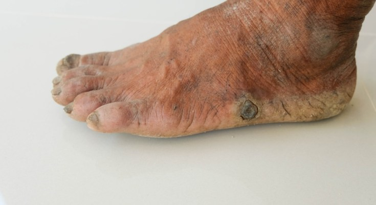 Do you suffer from foot warts?