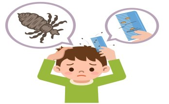 dealing with head lice