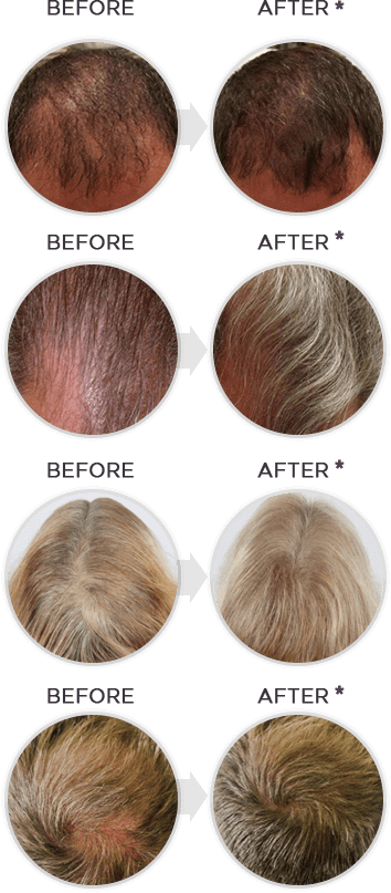 shapiro-md-shampoo-and-conditioner-hair_before_after
