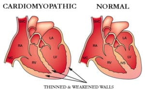 http://www.cormedicalgroup.com/wp-content/uploads/2013/02/dilated-cardiomyopathy-diagram.jpg