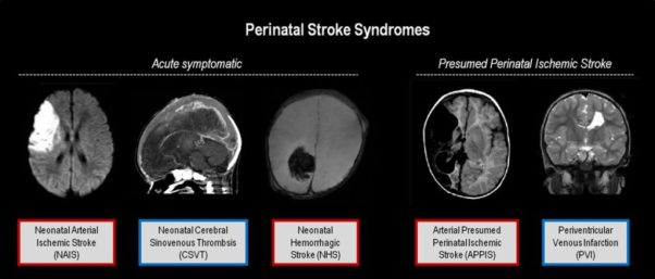http://stroke.ahajournals.org/content/strokeaha/44/11/3265/F1.large.jpg