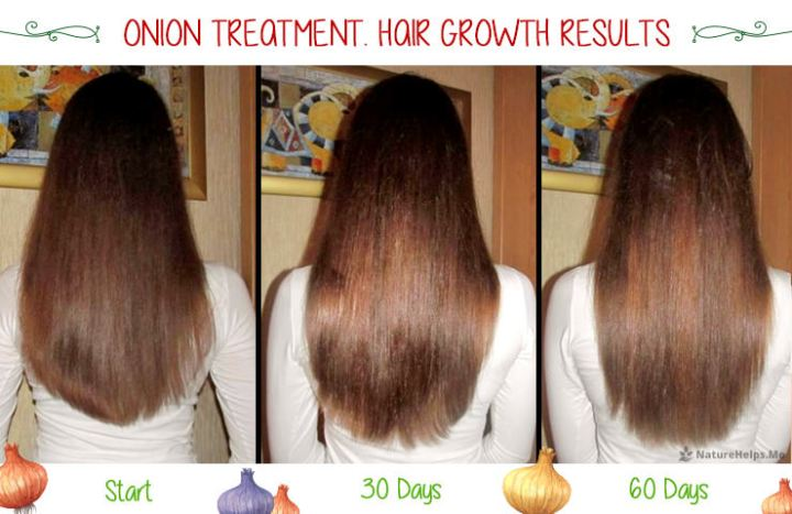 Onion Hair Mask Before And After Growth Results