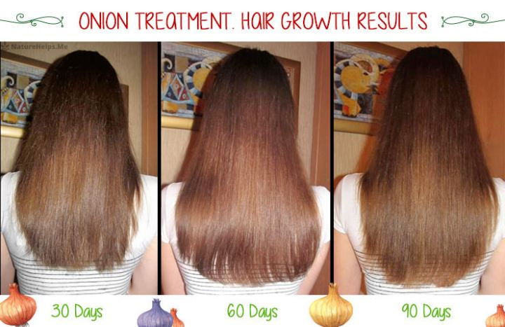 Onion Juice Hair Growth Before And After