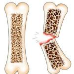 osteoporosis-and-calcium7.jpg