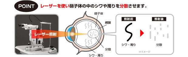 飛蚊癥が遂に日本でも治療可能に!飛蚊癥レーザー治療とは? 【レーシック眼科治療ナビ】