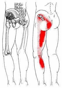 pain patterns