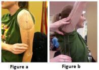 shoulder flexion goniometry